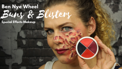 Burns and Blisters Wheel